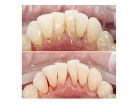 Профессиональная гигиена полости рта 9645 руб