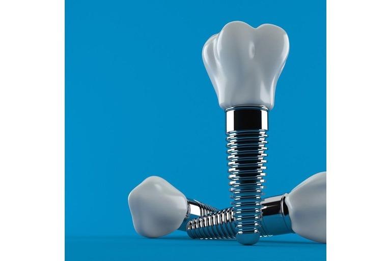 Имплантация зубов на премиум системе Astra  60000 руб